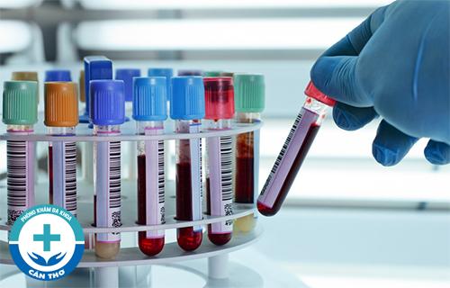 Xét nghiệm HPV để nhận biết bệnh sùi mào gà