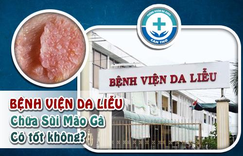Bệnh viện da liễu chữa sùi mào gà hiệu quả tại Cần Thơ