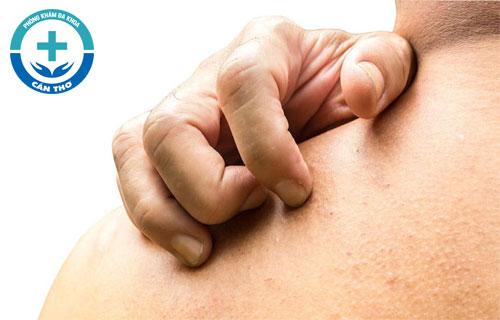 Những loại bệnh ngứa da thường gặp
