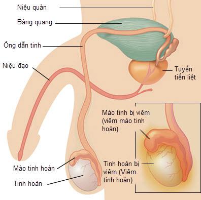 Tinh hoàn bị phù ở nam giới: nguyên nhân và cách chữa
