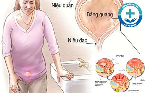 Biểu hiện bệnh viêm niệu đạo ở nữ