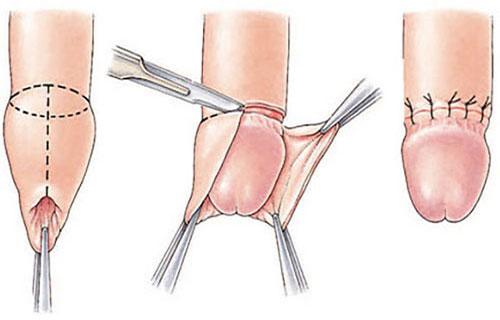 Quy trình cắt da quy đầu diễn ra như thế nào?