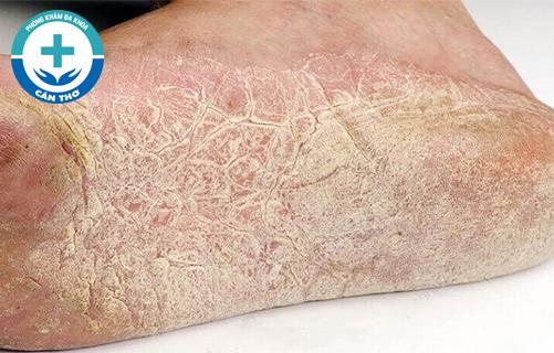 Triệu chứng và nguyên nhân gây bệnh chàm khô