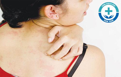 Chữa bệnh ngứa da tại nhà có hiệu quả hay không?