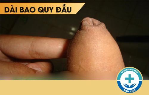 Thừa da quy đầu là gì? Cách điều trị thừa da quy đầu hiệu quả