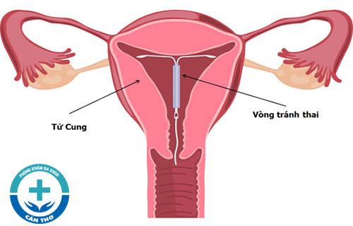 Có hay không việc mang thai khi đang đặt vòng tránh thai?