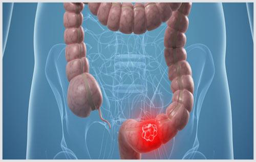 Bệnh viêm đại tràng là gì? cách chữa viêm đại tràng