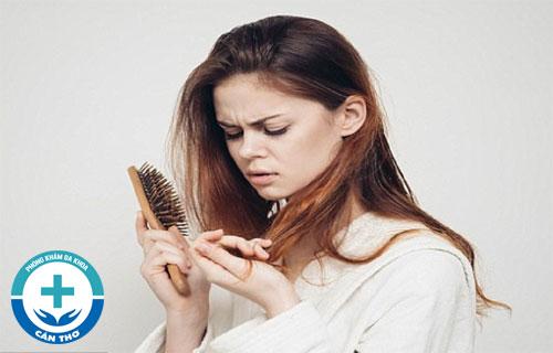 Địa chỉ chữa rụng tóc uy tín tại Cần Thơ?