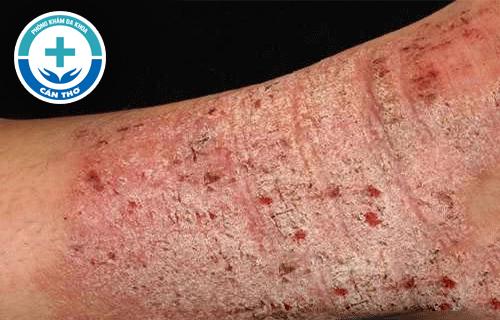 Bệnh eczema là gì? Cách điều trị hiệu quả