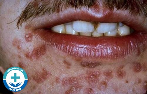 Dấu hiệu của bệnh giang mai ở miệng
