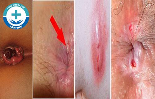 Hậu môn chảy nước và có mùi hôi là do bệnh gì gây ra?