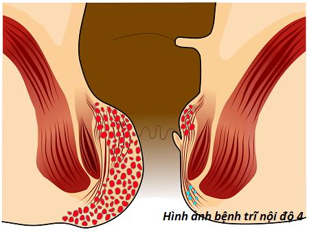 Những dấu hiệu của bệnh trĩ nội độ 4