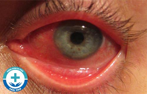 Bệnh lậu ở mắt có nguy hiểm không? Cách chữa như thế nào?