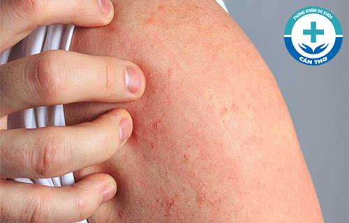 Da nổi mẩn đỏ ngứa là dấu hiệu của bệnh gì?