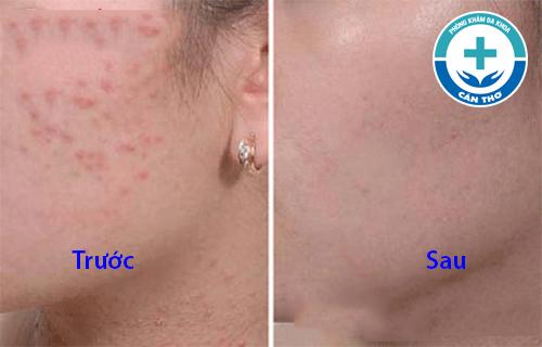 Mụn ẩn trên da mặt điều trị thế nào hiệu quả
