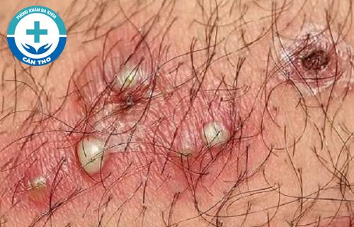 Herpes sinh dục – Nguyên nhân, triệu chứng và cách điều trị