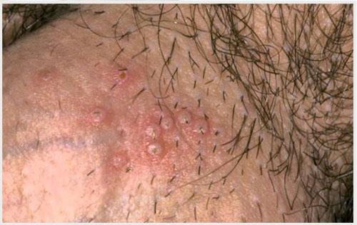 Nguyên nhân dẫn đến mụn rộp dương vật và cách điều trị