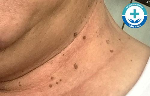 Nguyên nhân hình thành mụn thịt dư trên da?