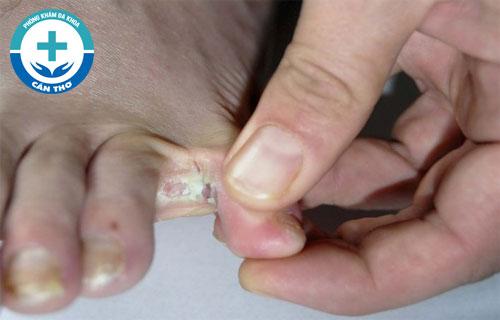 Nấm kẽ chân là bệnh gì và phương pháp điều trị hiệu quả ra sao?