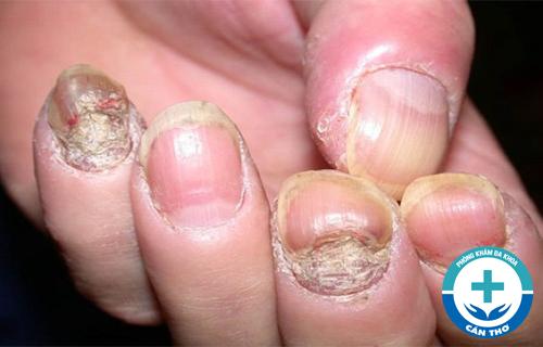 Triệu chứng, nguyên nhân của bệnh nấm móng và cách chữa