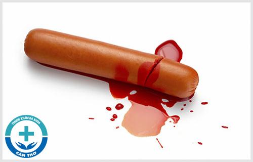 Dương vật chảy máu khi yêu là bị gì?