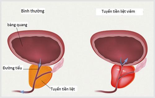 Những dấu hiệu viêm tuyến tiền liệt ở nam giới