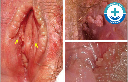 Nổi mụn ở âm đạo là bệnh gì? Nguyên nhân do đâu?
