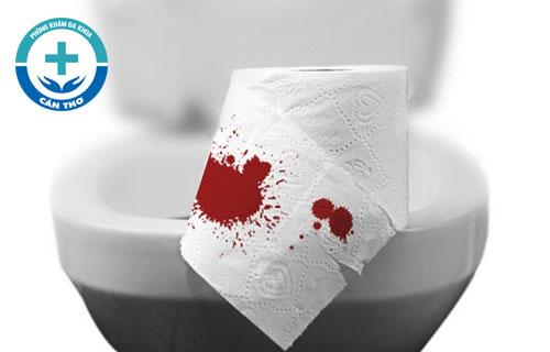 Đi cầu ra máu có phải mắc bệnh trĩ không?
