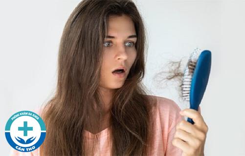 Phương pháp chữa rụng tóc hiệu quả