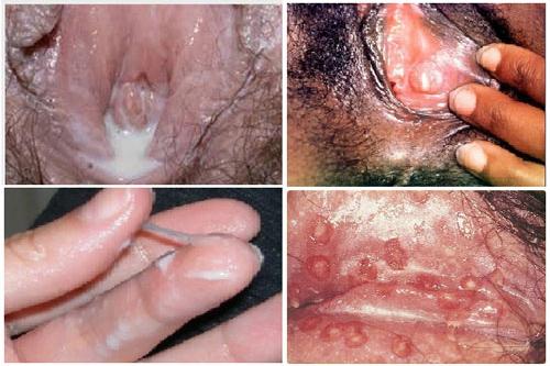 Cách chữa bệnh lậu hiệu quả ở nam giới và nữ giới