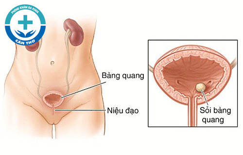 Tổng Quan Viêm Bàng Quang Ở Nữ Và Biểu Hiện Của Viêm Bàng Quang