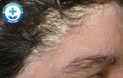 Một số bệnh da đầu gây ngứa hiện nay