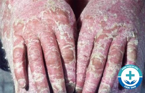 Tổng quan về bệnh vảy nến - Nguyên nhân, triệu chứng và cách chữa