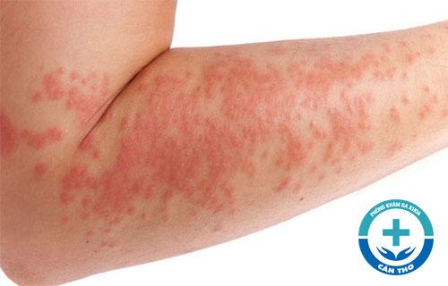 Nguyên nhân và cách chữa viêm da dị ứng