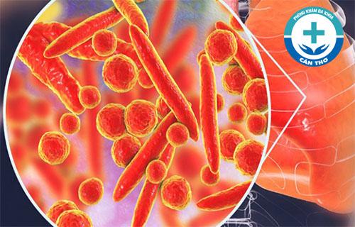 Nhiễm khuẩn Mycoplasma là gì? Làm thế nào để biết mình bị nhiễm khuẩn Mycoplasma