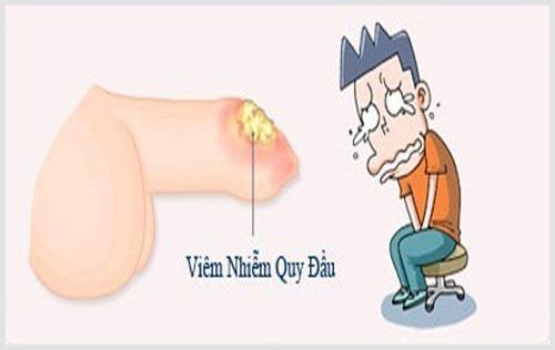 Niệu đạo chảy mủ là bệnh gì?