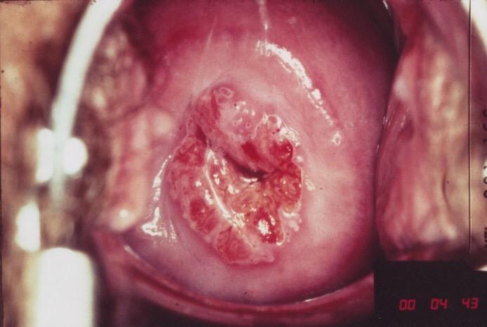 Sùi mào gà ở cổ tử cung - nguy hiểm khó lường đối với phụ nữ