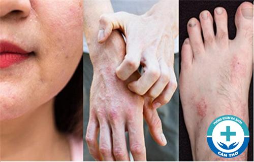 Viêm da cơ địa - Nguyên nhân, dấu hiệu và cách chữa