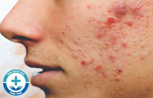 Viêm da mụn là gì và cách điều trị?