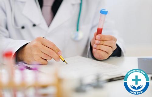Xét nghiệm RPR là gì?