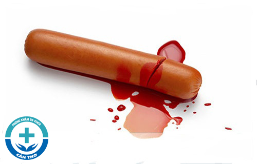 Xuất tinh ra máu ở nam giới: nguyên nhân và cách chữa